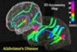 دانلود پاورپوینت اطلاعات کامل بیماری آلزایمر